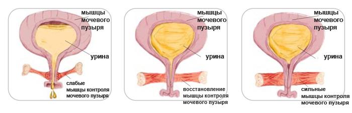 Опущение матки: определение симптомов и схема лечения